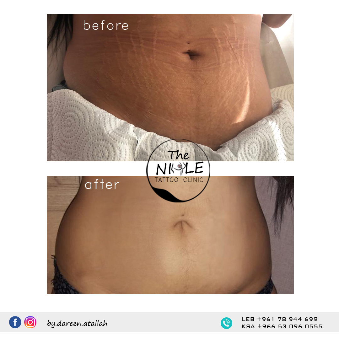 before and after client stretch marks