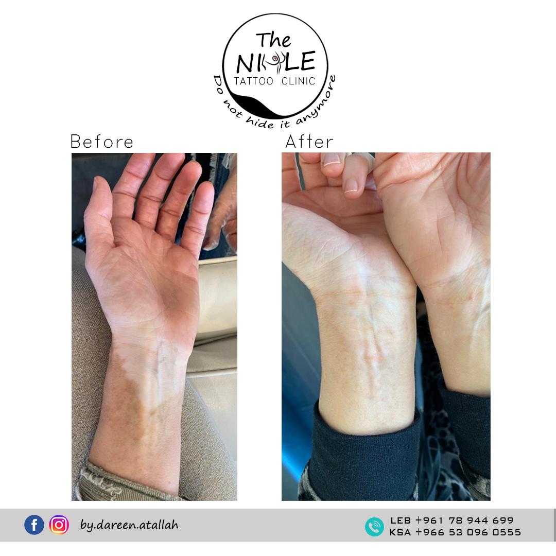 vitiligo case 002